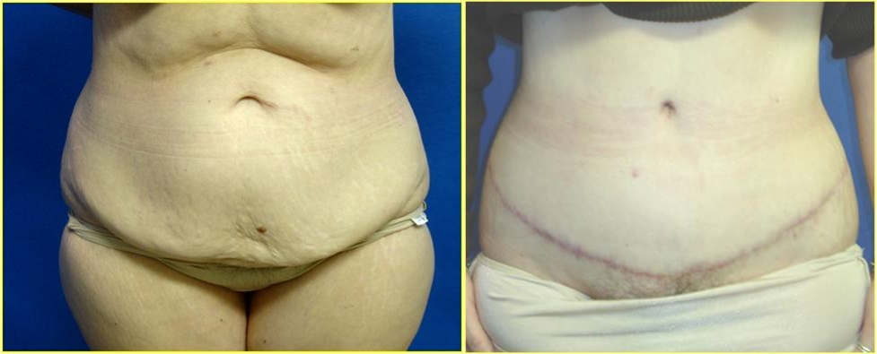 Abdominoplasty or Tummy Tuck Before Surgery Seattle, Tacoma, WA