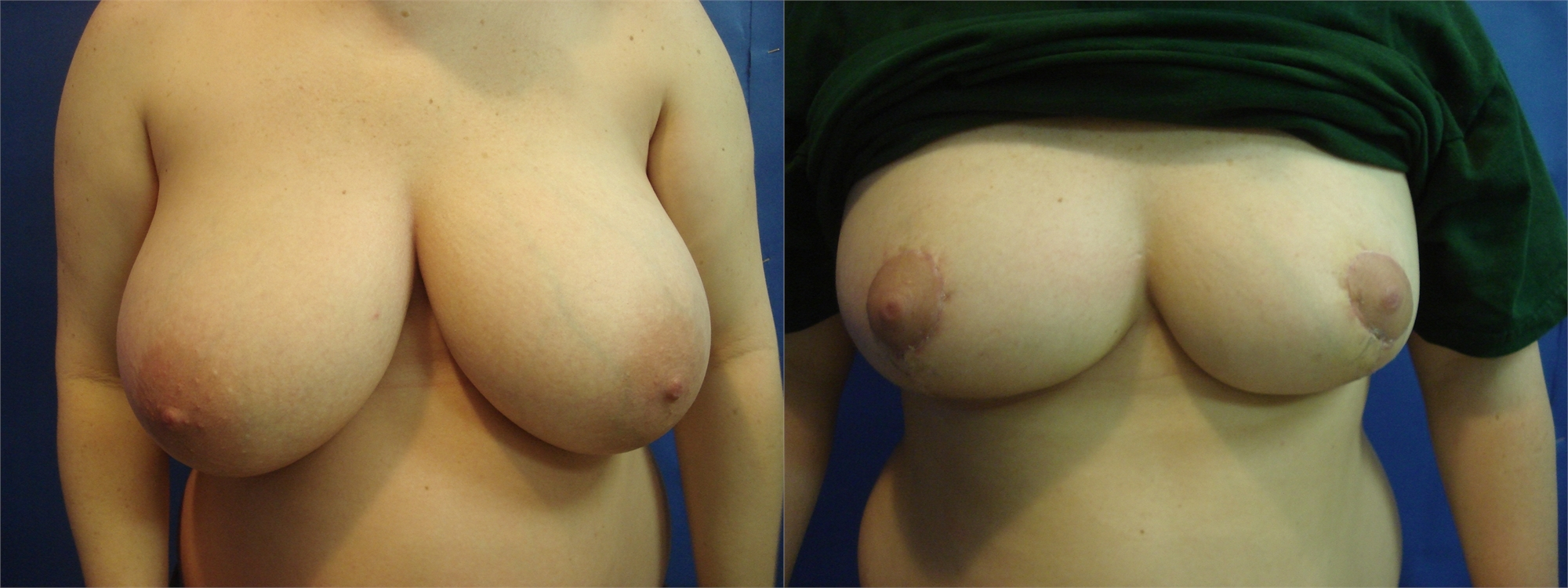Breast Lift Before and After Tacoma, WA