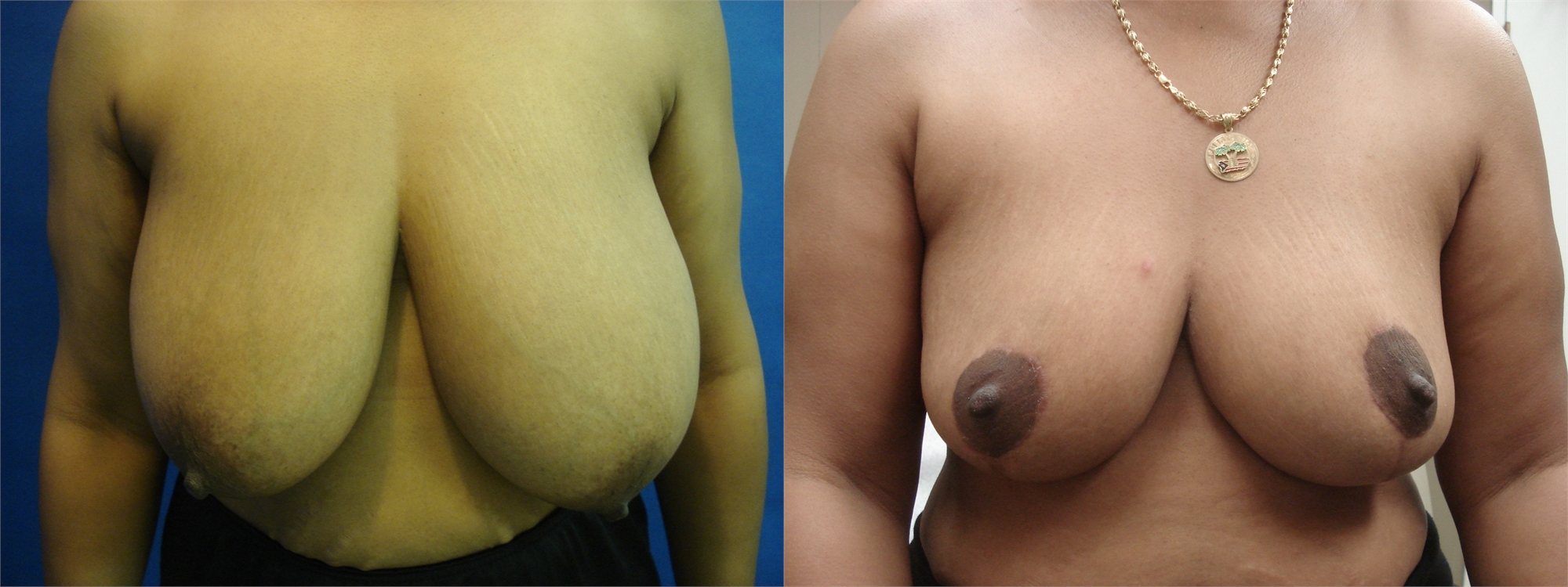 Breast Lift Before and After Surgery Tacoma, WA