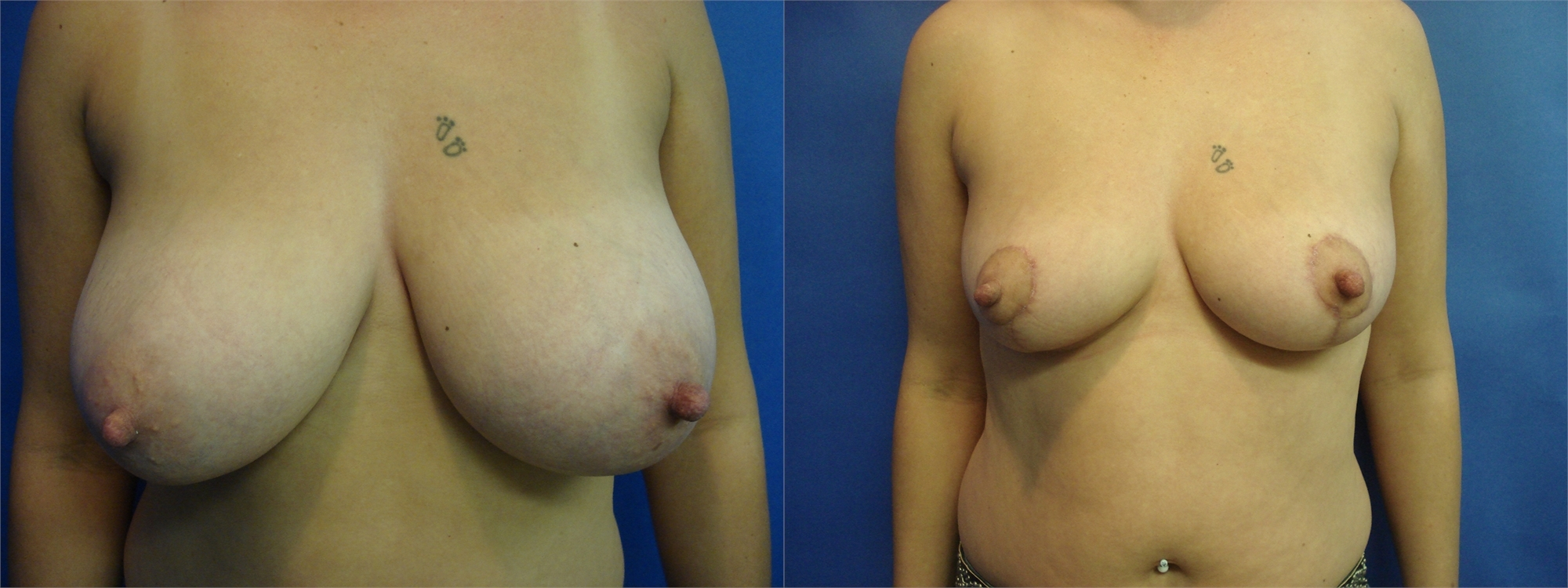 Breast Lift Before and After Photos Tacoma, WA