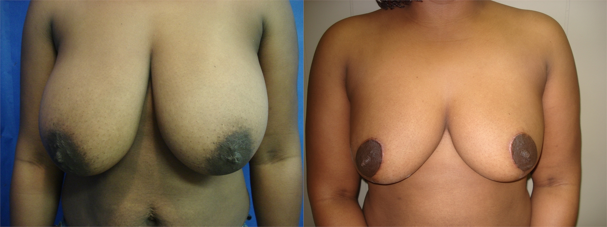 Breast Lift Before and After Seattle and Tacoma, WA