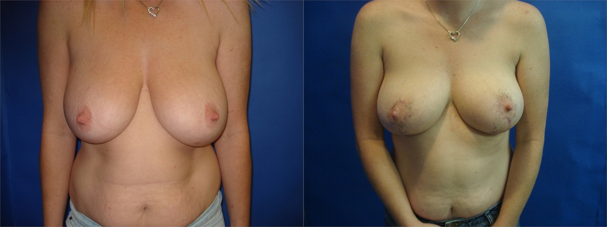 Breast Lift Before and After Photo Tacoma, WA