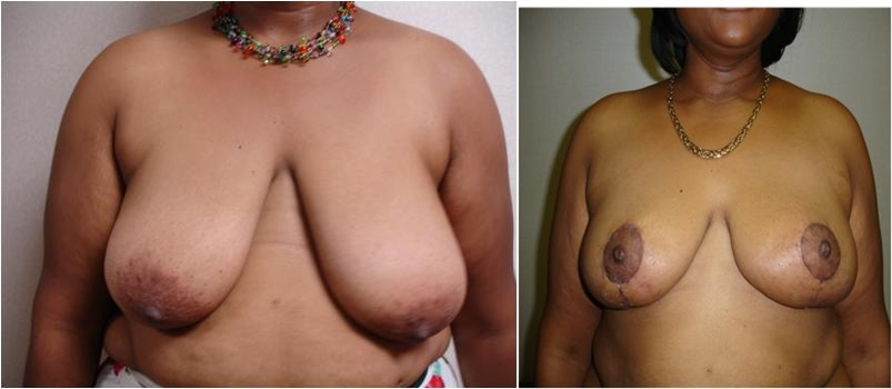 Breast Reduction Before Surgery Tacoma, WA