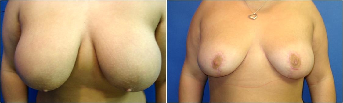 Before Breast Reduction Surgery Tacoma, WA