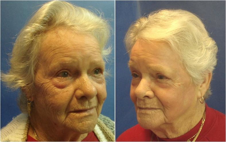 Before and After Fractional Resurfacing Procedure, Tacoma, WA