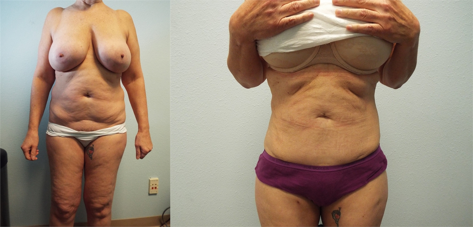 Liposuction Before And After Tacoma Wa