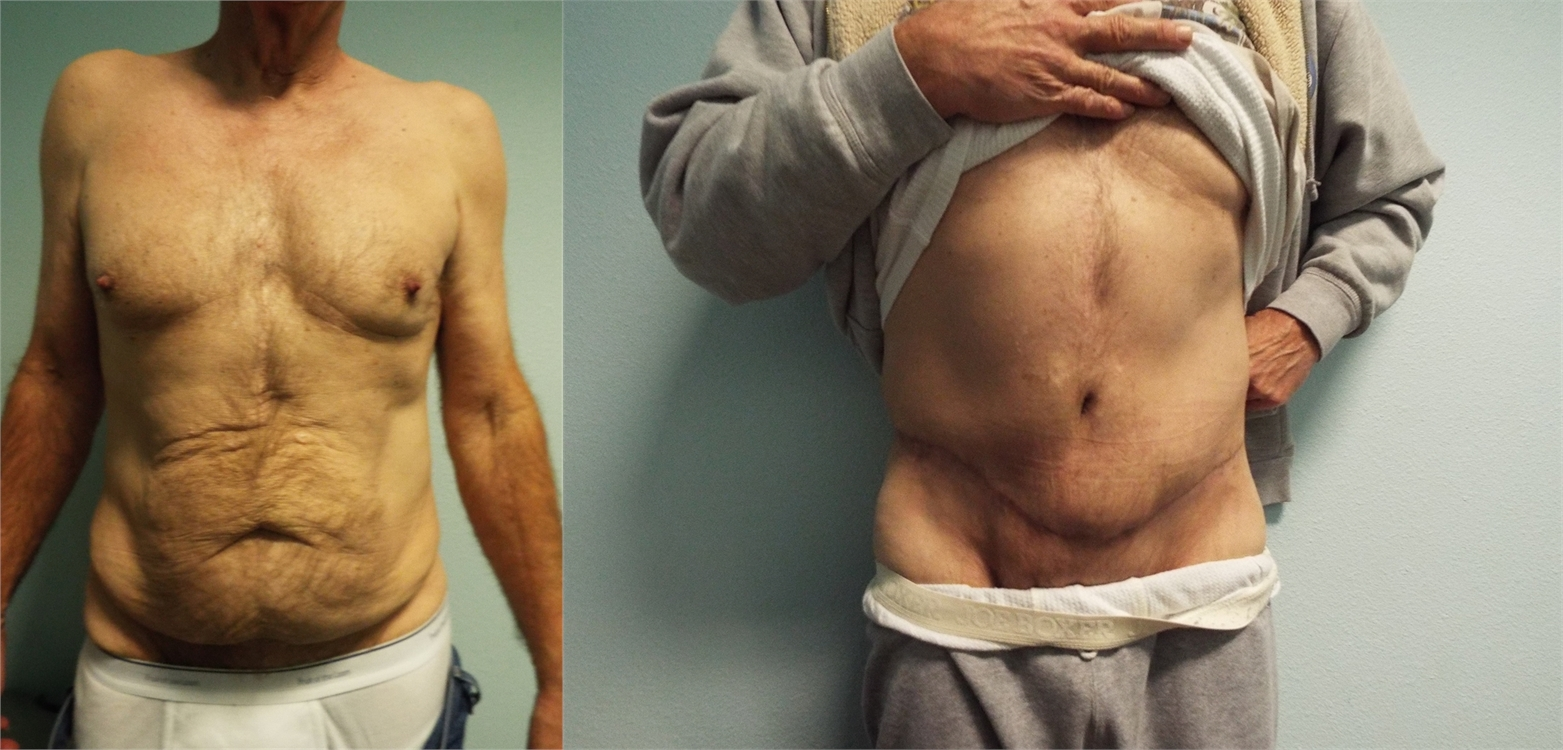 Tummy Tuck Before Surgery Tacoma, WA